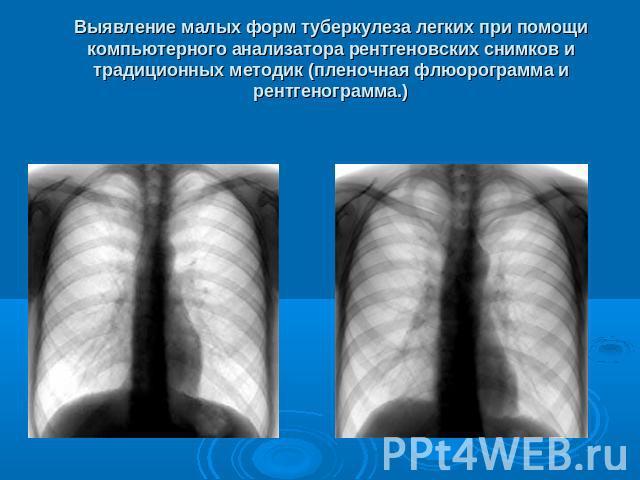 Туберкулез как определить открытую форму