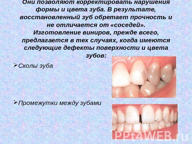 изготовление виниров зубным техником