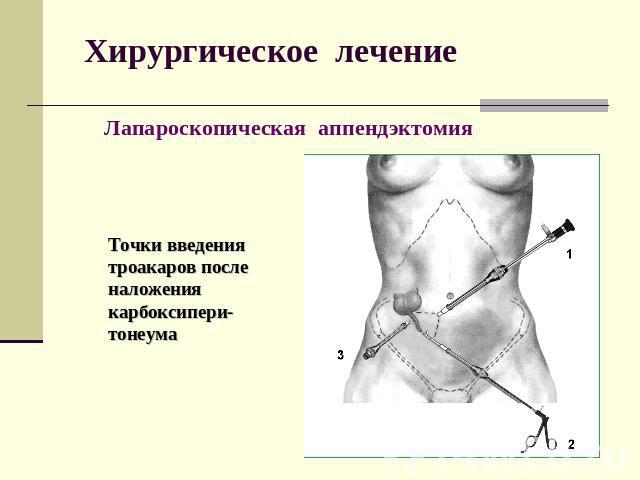 лечение потенции простатита препараты