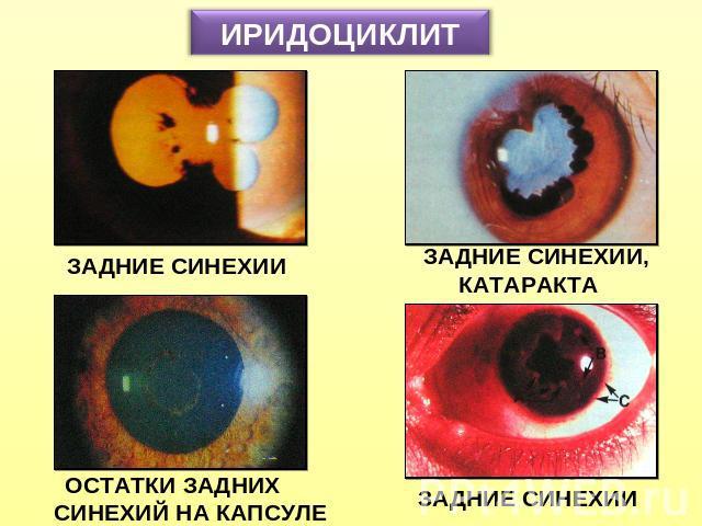Иридоциклит фото