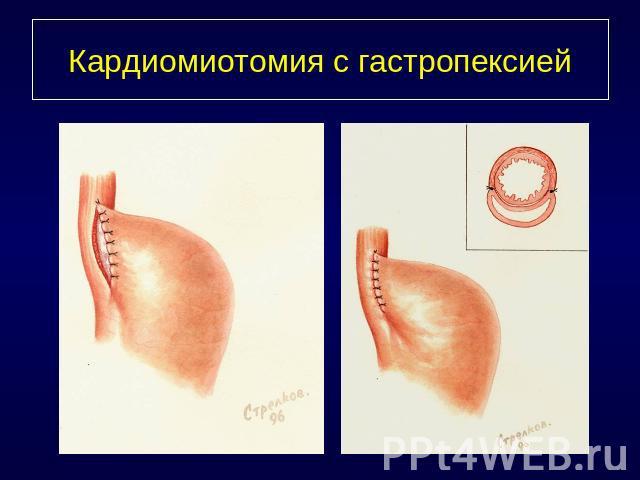 Кардиомиотомия фото