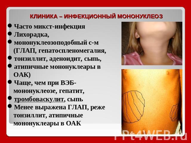 Микст-инфекция фото