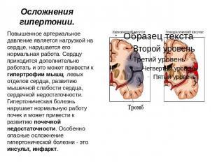 Дуоденальная гипертензия лечение