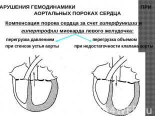 Недостаточность аортального клапана. Стеноз аортального клапана ...