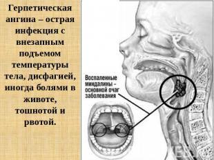 Презентацию теме по ангина