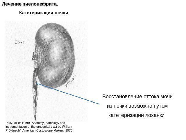микробные возбудители пиелонефрита