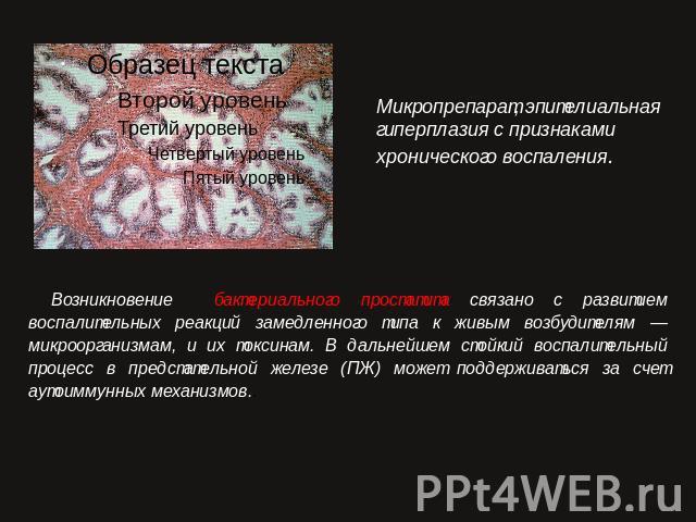 презентация хронический простатита