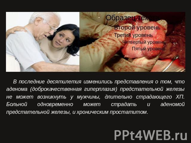 Рак простаты с метостазами в костях