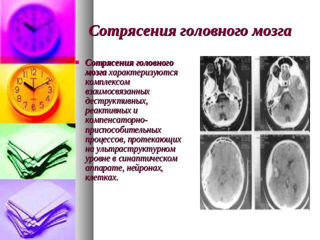 Сотрясение головного мозга у ребенка как лечить