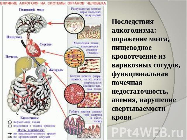 поражение человека паразитами