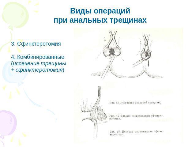 sochetannaya-analnaya-treshina