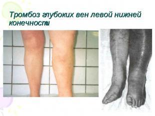 Жжение вен на ногах лечение