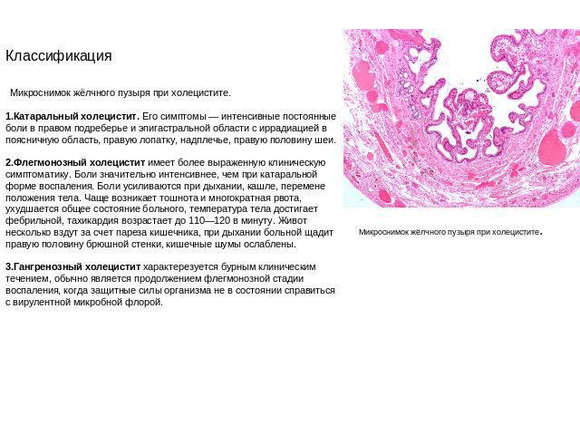 Холециститы