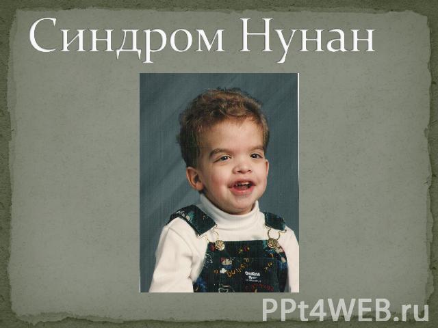 синдром нунан фото