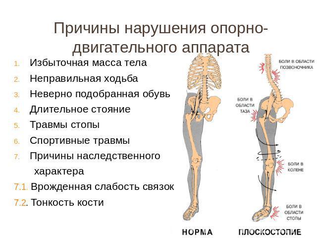 Причины нарушения опорно-двигательного аппарата Избыточная масса тела Непра