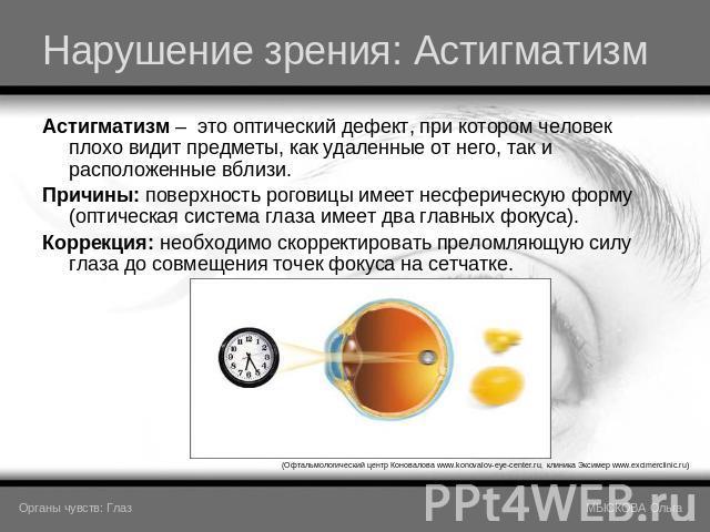 Лазерная коррекция зрения расширенные зрачки