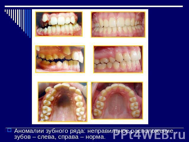 Как самой выровнять зубы