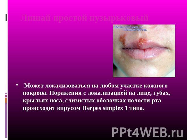 "Презентация на тему ""Заболевания кожи"" - скачать презентации по Медицине"