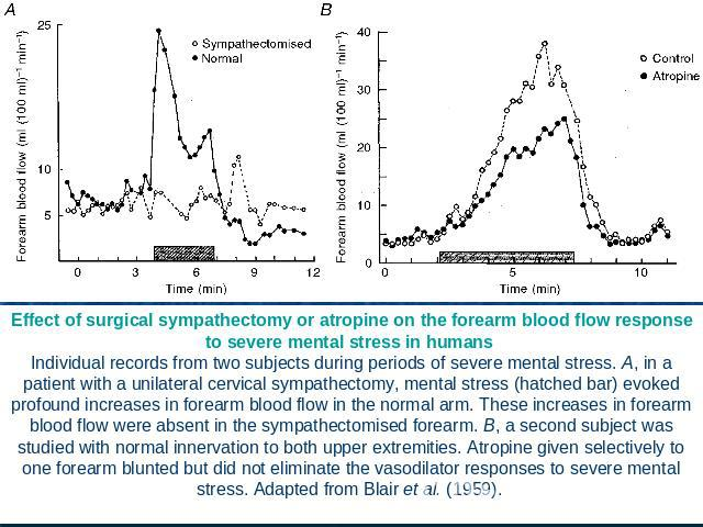 Effect of surgical sympathectomy or atropine on the forearm blood flow response to severe mental stress in humans Individual records from two subjects during periods of severe mental stress. A, in a patient with a unilateral cervical sympathectomy, …