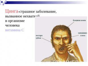 картинки почему люди болеют цингой