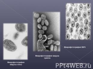 Микрофотография вирусы оспы Микрофотография вируса гриппа Микрофотография ВИЧ