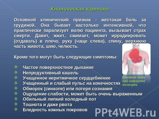 треугольника можно ли есть грибы после инфаркта миокарда решились приобрести квартиру
