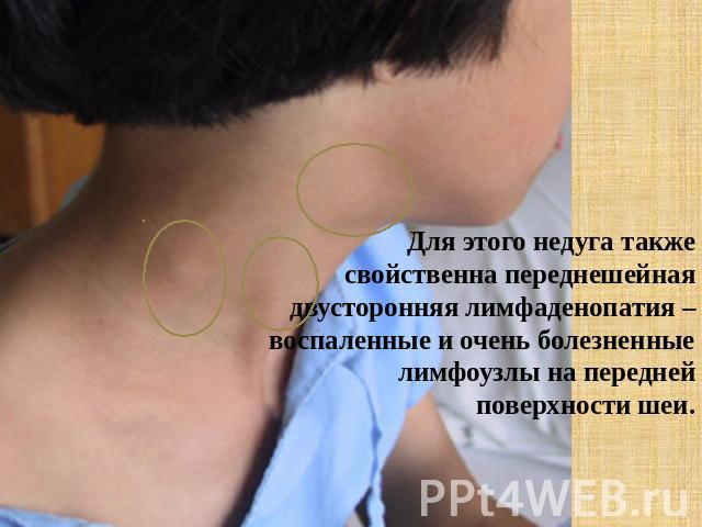 для стирки воспалился задний шейный лимфоузел высокой физической активности