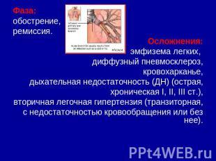 Бронхит скачать презентацию бесплатно thumbnail