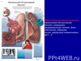 Пример формулировки диагноза:Хронический обструктивный бронхит, непрерывнорециди