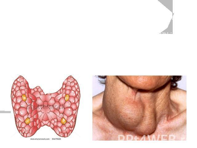 Чтобы понять, как работает щитовидная железа у детей, сразу после рождения производят исследования крови.