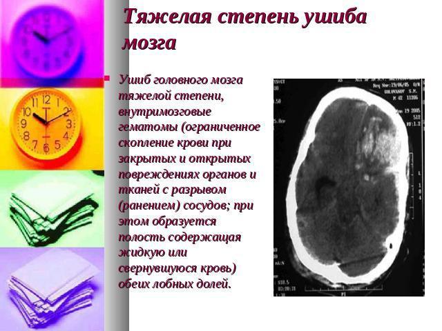 везде сотрясение мозга к какой степени тяжести относится администратором салон