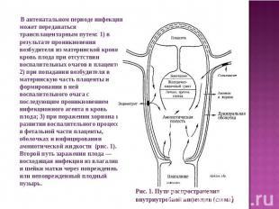 В антенатальном периоде инфекция может передаваться трансплацентарным путем: 1)