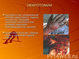 НЕКРОТОМИИ Проводятся при формировании плотного циркулярного некроза, который ка