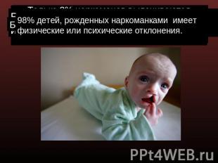 фото аномалий у детей