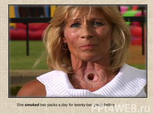 She smoked two packs a day for twenty-two years before