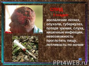СПИД 3 стадия:воспаление легких, опухоли, туберкулез, потеря зрения, слуха, кише